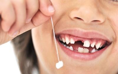 удаление зубов в Казани фото