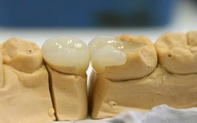 Микропротезирование зубов фото