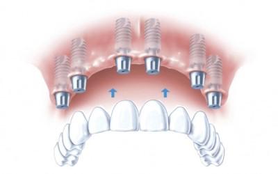 Cъемное протезирование зубов фото