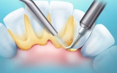 Ультразвуковая чистка зубов, гигиена полости рта фото