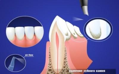 Зубной налет и зубной камень фото