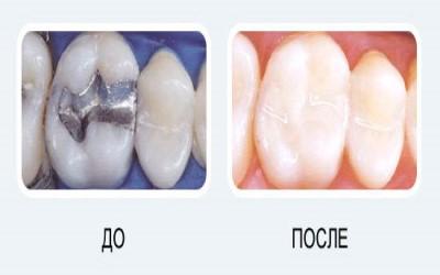 Художественная реставрация зубов до и после фото