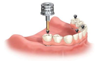 Условно-съемное протезирование зубов фото