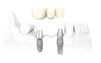 Имплантация зубов системой Alpha BIO фото