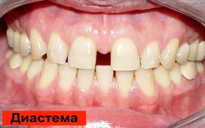 щели между зубами фото