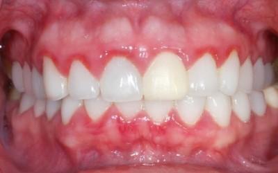 зубы фото