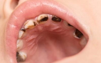 кариес зубов фото