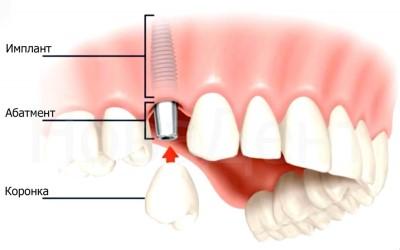 устройство зубного импланта фото