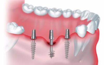 схема имплантации зубов фото
