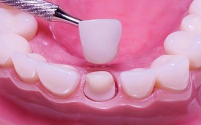 зубная коронка фото