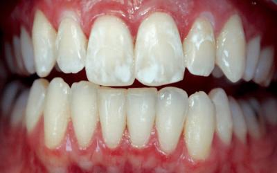Флюороз зубов фото