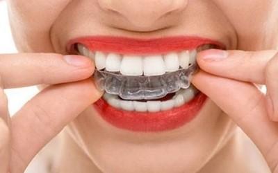 Капы для зубов фото