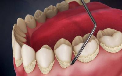 правильная чистка зубов фото