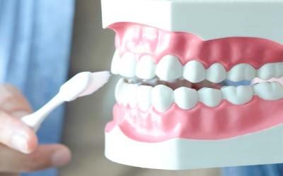 как ухаживать за имплантами зубов фото